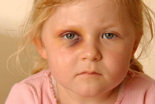 """W tym domu dzieci nie były bite, one były katowane. """"Matka zanurzała twarz dziewczynki w gorącym rosole"""""""
