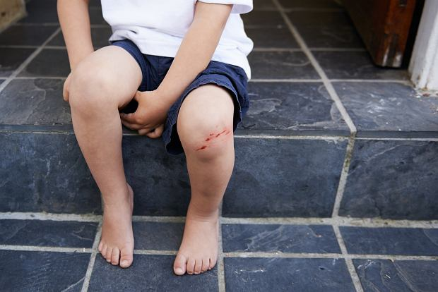 A young boy sitting on a step with a cut on his knee - cropped