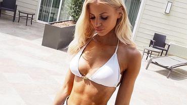 Linn Lowes. Od wychudzonej, śmiertelnie chorej dziewczyny do gwiazdy fitnessu!