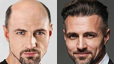 Lekarka: Tylko eunuch nie łysieje. Młody pacjent: To proszę mnie wykastrować. Problem łysienia mężczyzn