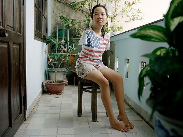 Przez działalność koncernu chemicznego 21-letnia Thuy Linh urodziła się bez rąk. Fotograficzne śledztwo na Fotofestiwalu w Łodzi