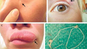 32-latce pod skórą twarzy zagnieździł się pasożyt. Przenoszą go komary i występuje też w Polsce