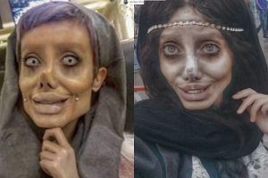 Chciała być jak Angelina Jolie, wyszło koszmarnie. Zobaczcie inne ofiary nieudanych operacji